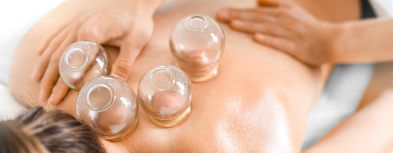 Cupping Therapy Sheridan, Malvern, Benton, and Bryant, AR