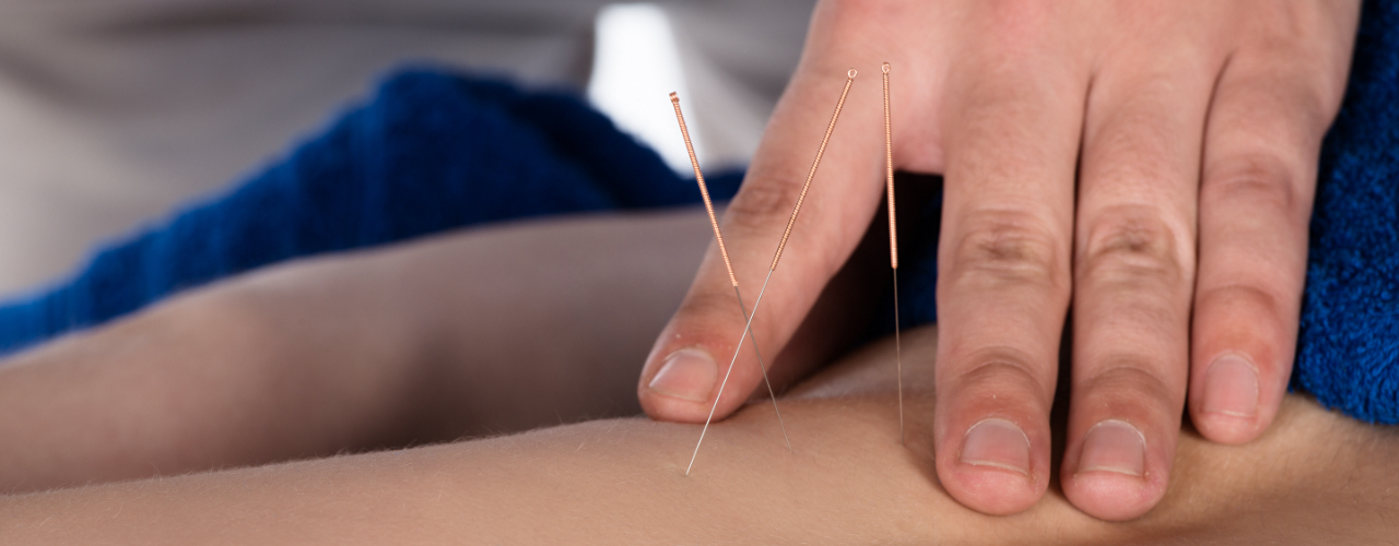 Dry Needling Therapy Sheridan, Malvern, Benton, and Bryant, AR